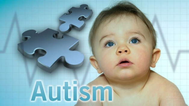 Lifespan of Autism Spectrum Disorder